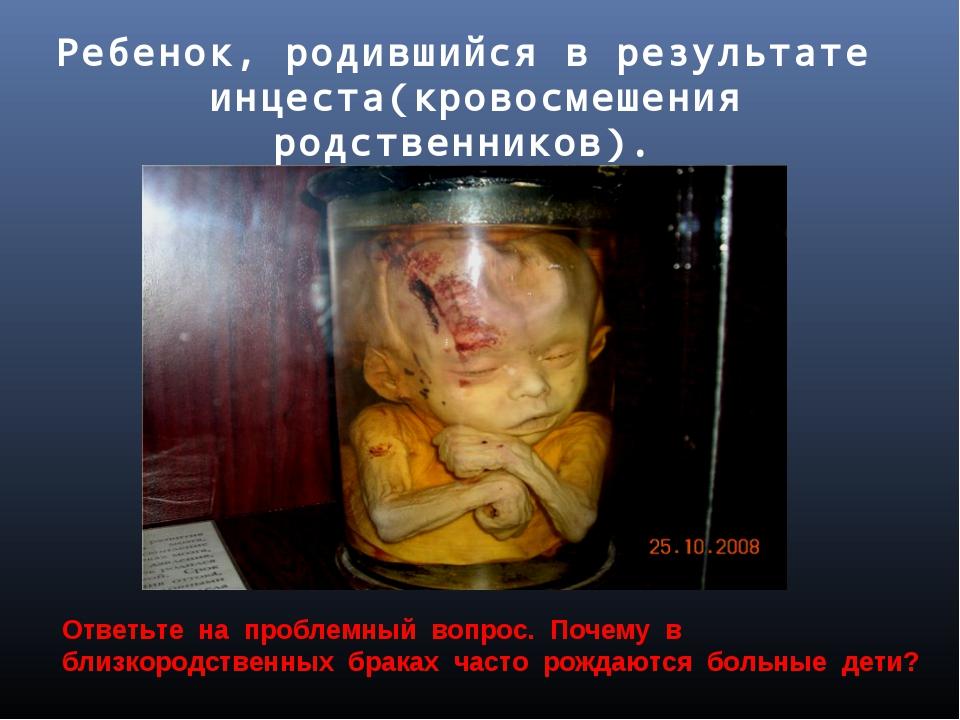 Ребенок, родившийся в результате инцеста(кровосмешения родственников). Натура...