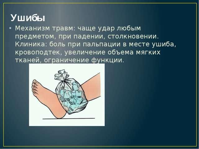 Ушибы Механизм травм: чаще удар любым предметом, при падении, столкновении. К...