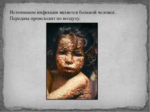Источником инфекции является больной человек . Передача происходит по воздуху.