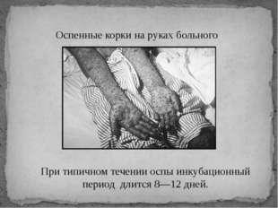 Оспенные корки на руках больного При типичном течении оспы инкубационный п
