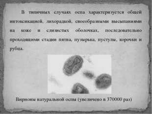 В типичных случаях оспа характеризуется общей интоксикацией, лихорадкой, сво
