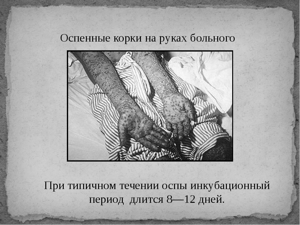 Оспенные корки на руках больного При типичном течении оспы инкубационный п...