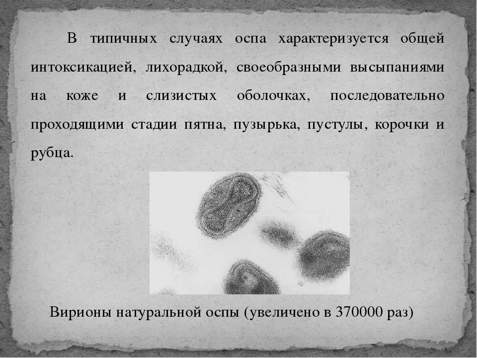 В типичных случаях оспа характеризуется общей интоксикацией, лихорадкой, сво...