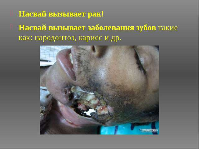 Насвай вызывает рак! Насвай вызывает заболевания зубовтакие как: пародонтоз,...