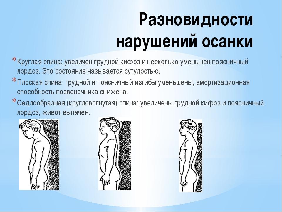Разновидности нарушений осанки Круглая спина: увеличен грудной кифоз и нескол...