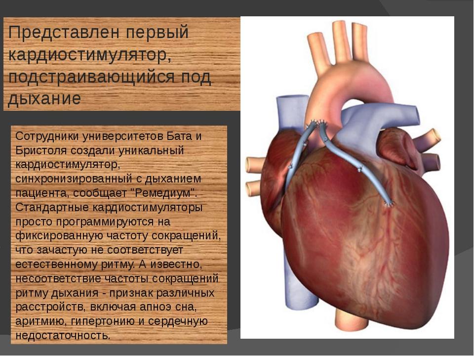Сотрудники университетов Бата и Бристоля создали уникальный кардиостимулятор,...