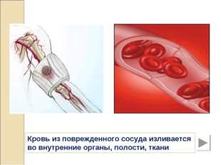 Кровь из поврежденного сосуда изливается во внутренние органы, полости, ткани