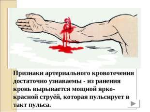 Признаки артериального кровотечения достаточно узнаваемы - из ранения кровь в