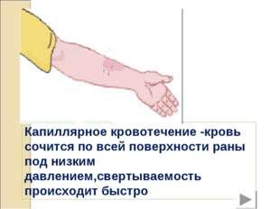 Капиллярное кровотечение -кровь сочится по всей поверхности раны под низким д