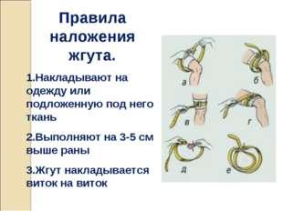 Правила наложения жгута. 1.Накладывают на одежду или подложенную под него тка