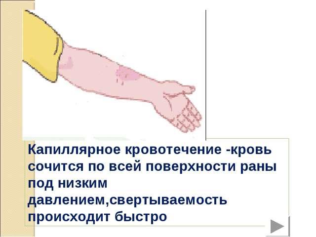 Капиллярное кровотечение -кровь сочится по всей поверхности раны под низким д...