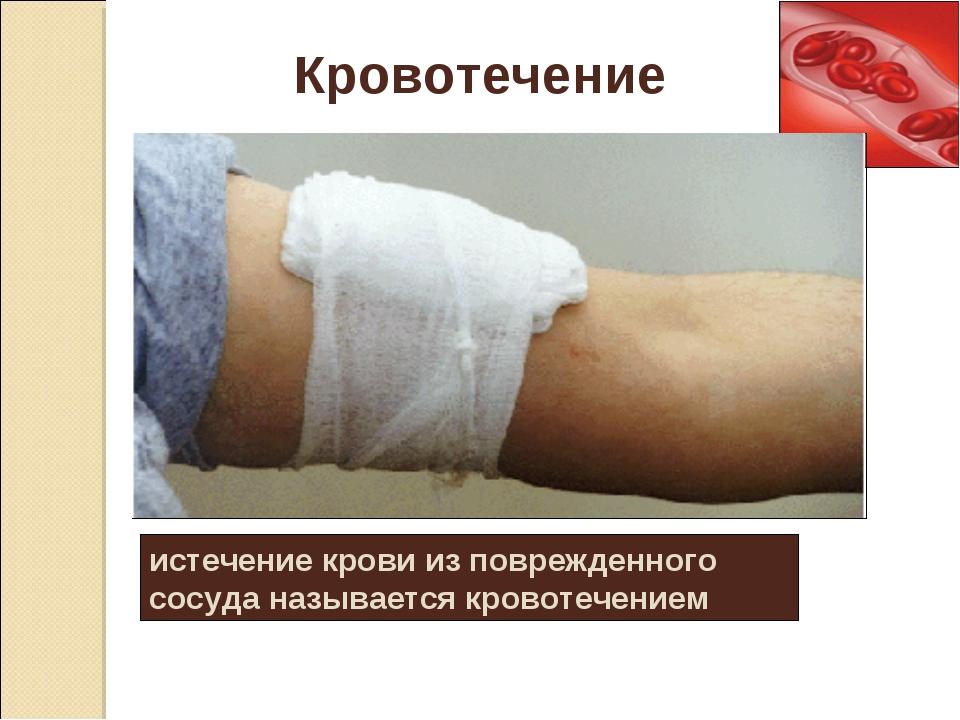 истечение крови из поврежденного сосуда называется кровотечением Кровотечение