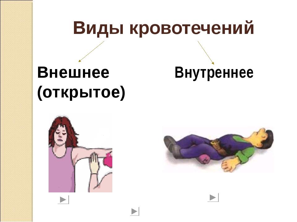 Виды кровотечений Внешнее (открытое) Внутреннее
