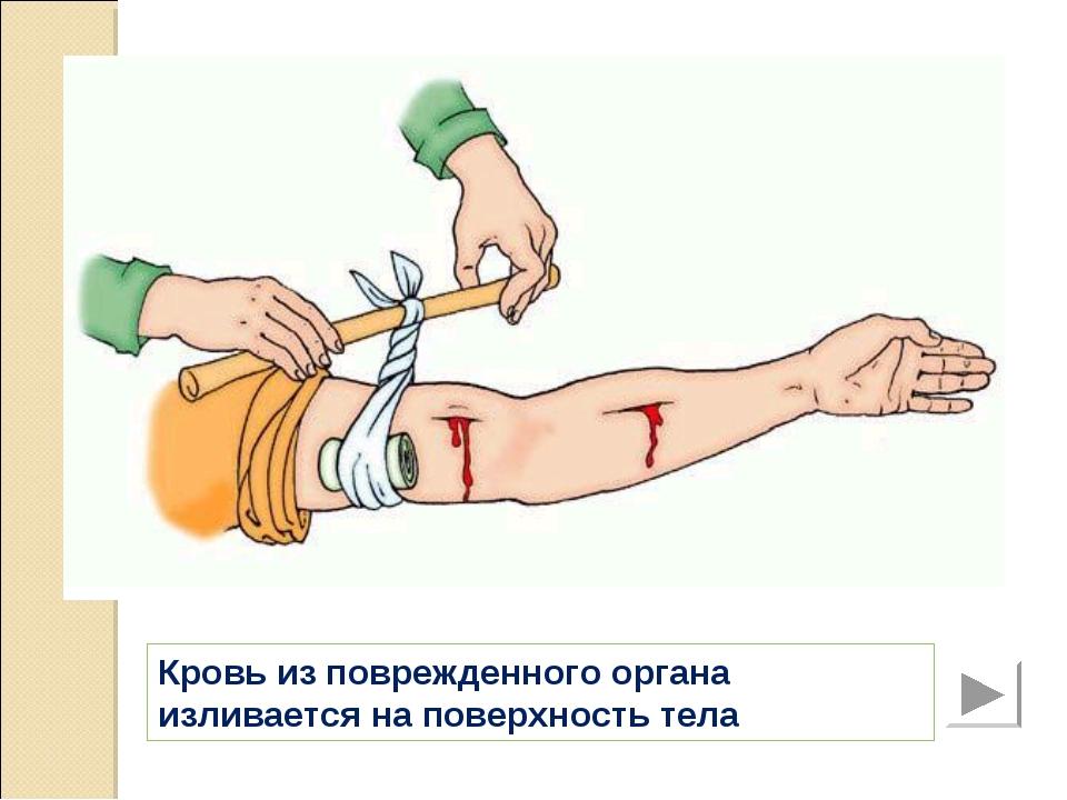 Кровь из поврежденного органа изливается на поверхность тела