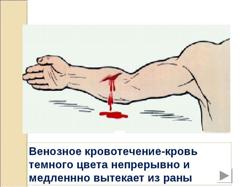 Венозное кровотечение-кровь темного цвета непрерывно и медленнно вытекает из...