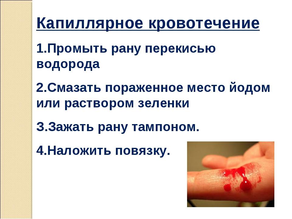 Капиллярное кровотечение 1.Промыть рану перекисью водорода 2.Смазать пораженн...