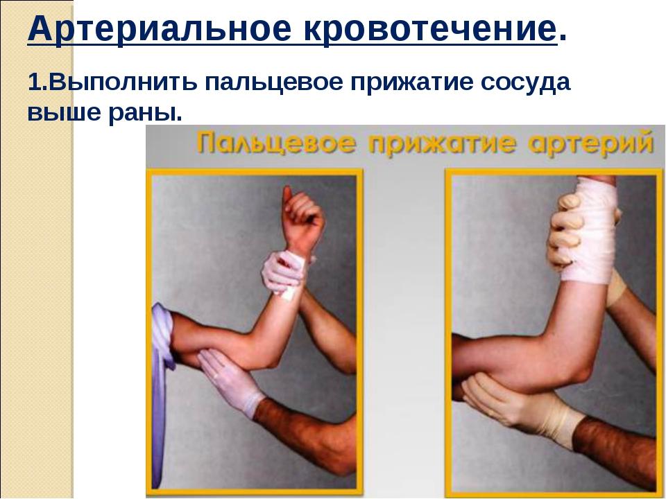 Артериальное кровотечение. 1.Выполнить пальцевое прижатие сосуда выше раны.