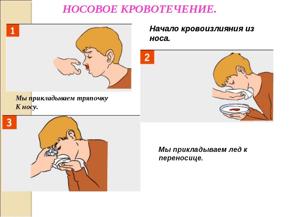 Травма носа что делать при кровотечении