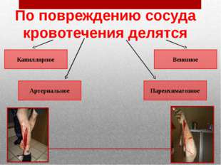 Капиллярное Артериальное Венозное Паренхиматозное По повреждению сосуда крово