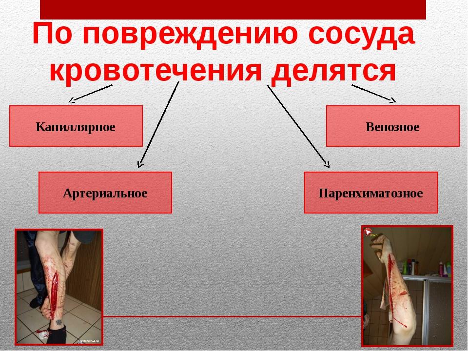 Капиллярное Артериальное Венозное Паренхиматозное По повреждению сосуда крово...