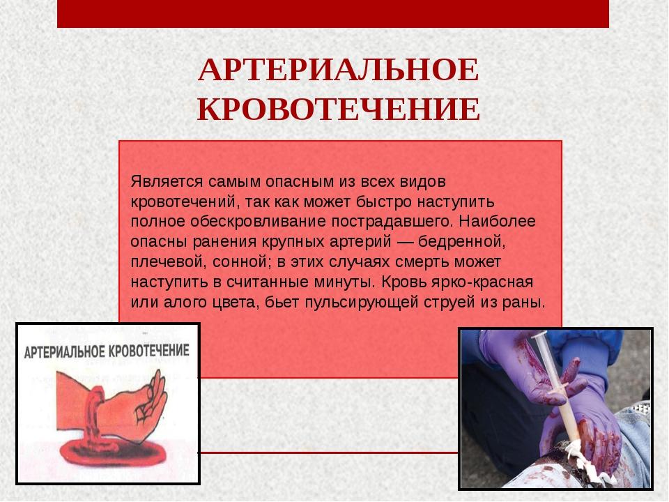 АРТЕРИАЛЬНОЕ КРОВОТЕЧЕНИЕ Является самым опасным из всех видов кровотечений,...