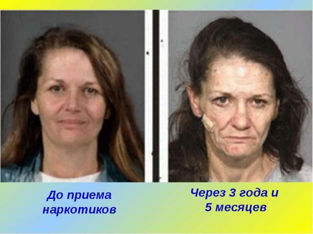 Через 3 года и 5 месяцев До приема наркотиков
