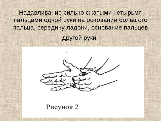 Надавливание сильно сжатыми четырьмя пальцами одной руки на основании большог...