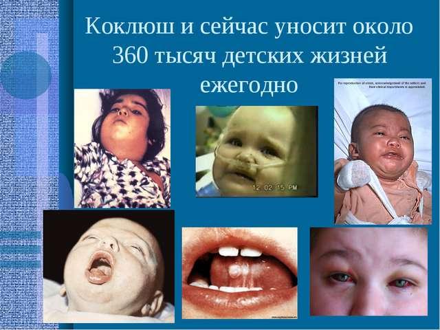 Коклюш и сейчас уносит около 360 тысяч детских жизней ежегодно
