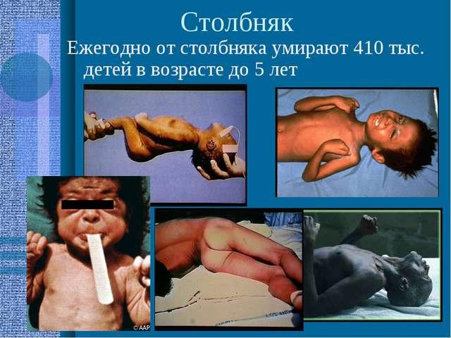 Столбняк Ежегодно от столбняка умирают 410 тыс. детей в возрасте до 5 лет