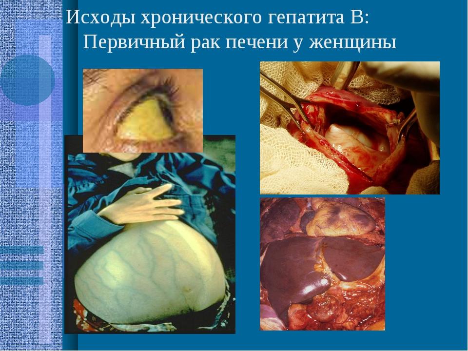 Исходы хронического гепатита В: Первичный рак печени у женщины