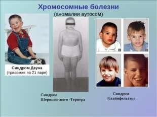 Хромосомные болезни (аномалии аутосом) Синдром Дауна (трисомия по 21 паре) Си