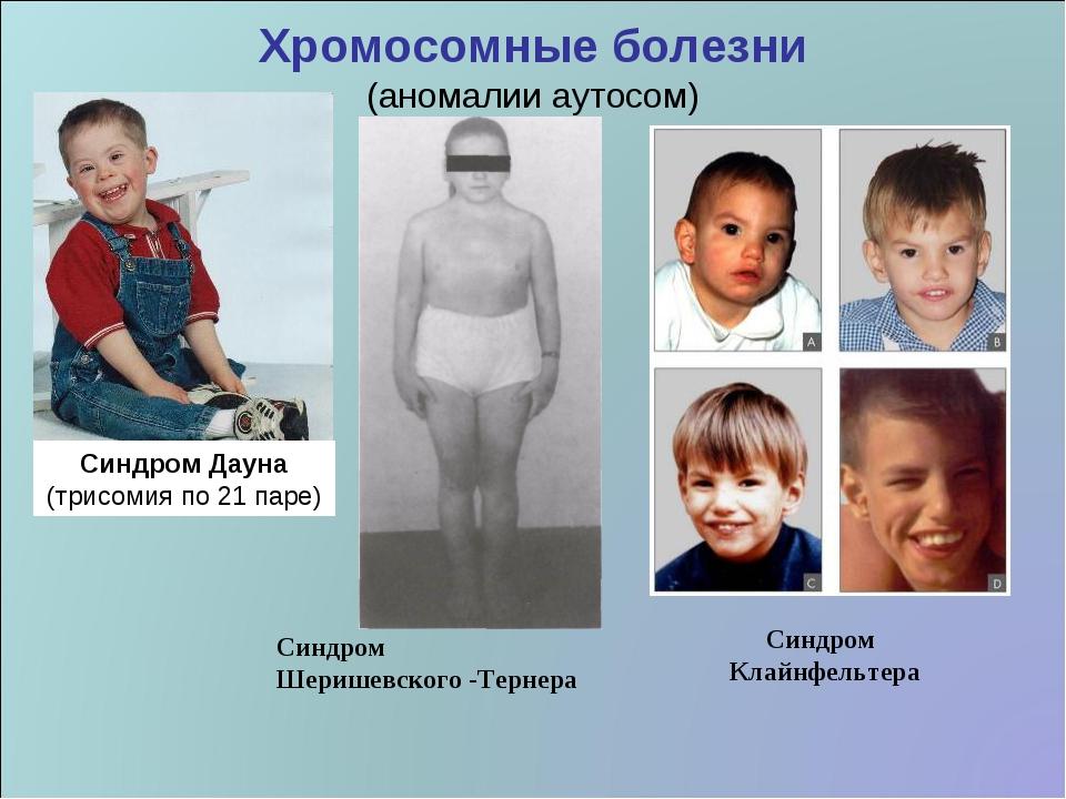 Хромосомные болезни (аномалии аутосом) Синдром Дауна (трисомия по 21 паре) Си...