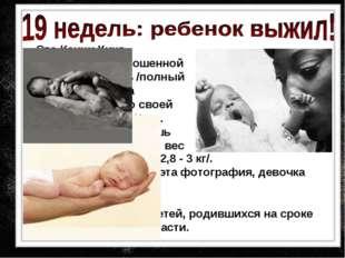 Это Кенни Кинг, родившаяся недоношенной на сроке 19 недель /полный срок 40 н