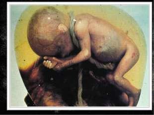Как не рассматривай аборт, то его следствие одинаково с преступлением маньяко