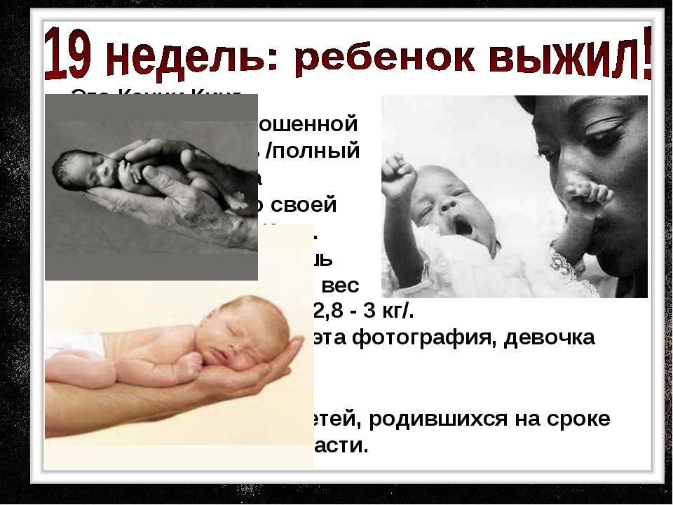 Это Кенни Кинг, родившаяся недоношенной на сроке 19 недель /полный срок 40 н...