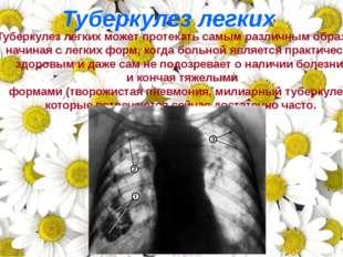 Туберкулез легких может протекать самым различным образом: начиная с легких ф