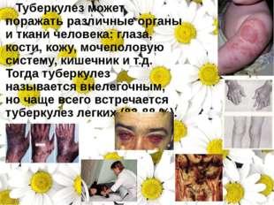 Туберкулез может поражать различные органы иткани человека: глаза, кости, к