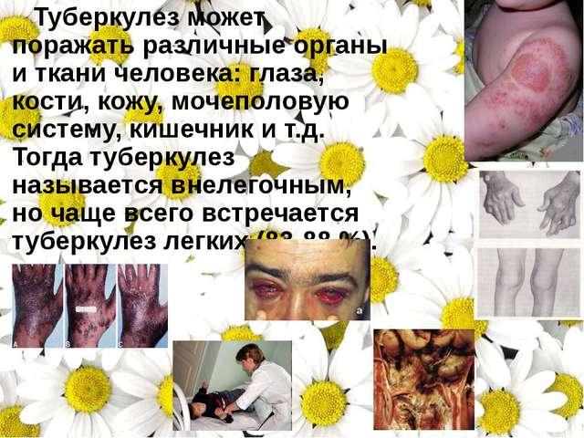 Туберкулез может поражать различные органы иткани человека: глаза, кости, к...