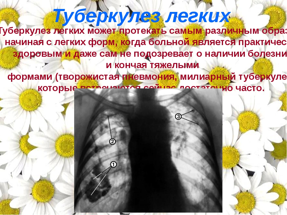 Туберкулез легких может протекать самым различным образом: начиная с легких ф...