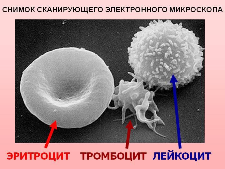 F:\\8 класс -урок с использ ИКТ по теме Лейкоциты Тромбоциты Свертывание крови Фагоцитоз\1_1_sostav_krovi.jpg