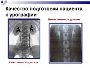 Качество подготовки пациента к урографии Качественная подготовка Некачественн