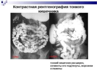 Контрастная рентгенография тонкого кишечника тонкий кишечник расширен, сегмен