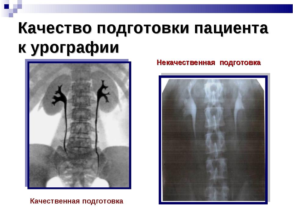 Качество подготовки пациента к урографии Качественная подготовка Некачественн...