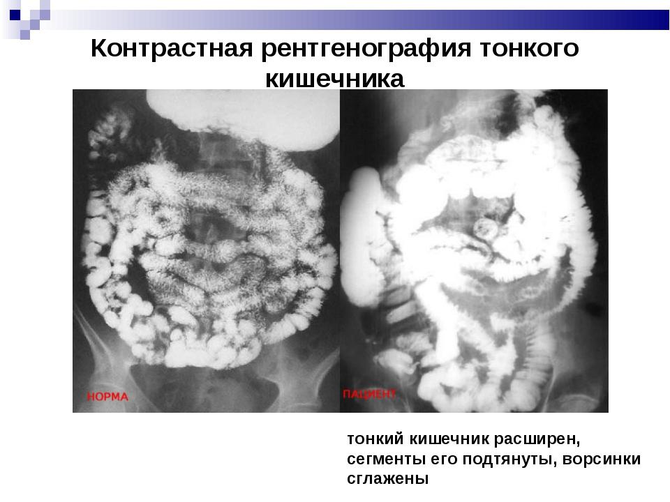 Контрастная рентгенография тонкого кишечника тонкий кишечник расширен, сегмен...