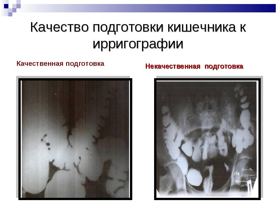 Качество подготовки кишечника к ирригографии Качественная подготовка Некачест...