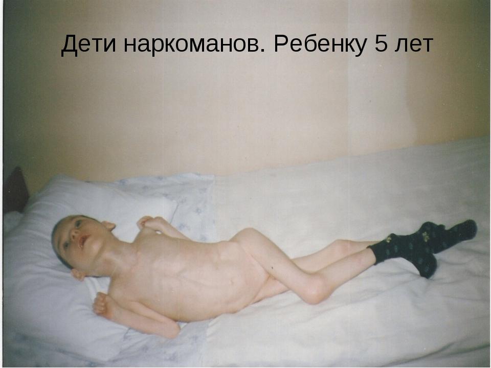 Дети наркоманов. Ребенку 5 лет