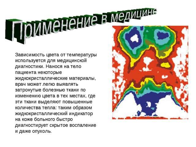 Зависимость цвета от температуры используется для медицинской диагностики. На...