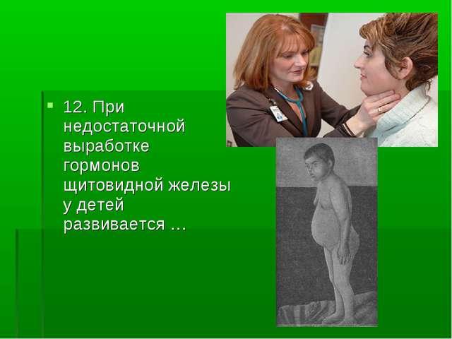 12. При недостаточной выработке гормонов щитовидной железы у детей развиваетс...