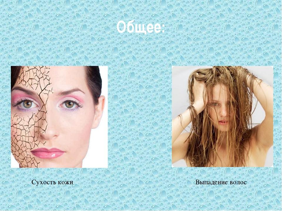 Общее: Выпадение волос Сухость кожи