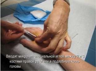 Вводят микрочип специальной иглой между 2 и 3 костями правой руки или в подло
